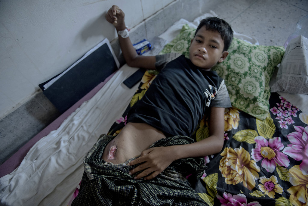 Mamod Ismail is 14 years old. During the escape from his village, Sinapara, he was hit by a projectile from one of the Burmese military guns.